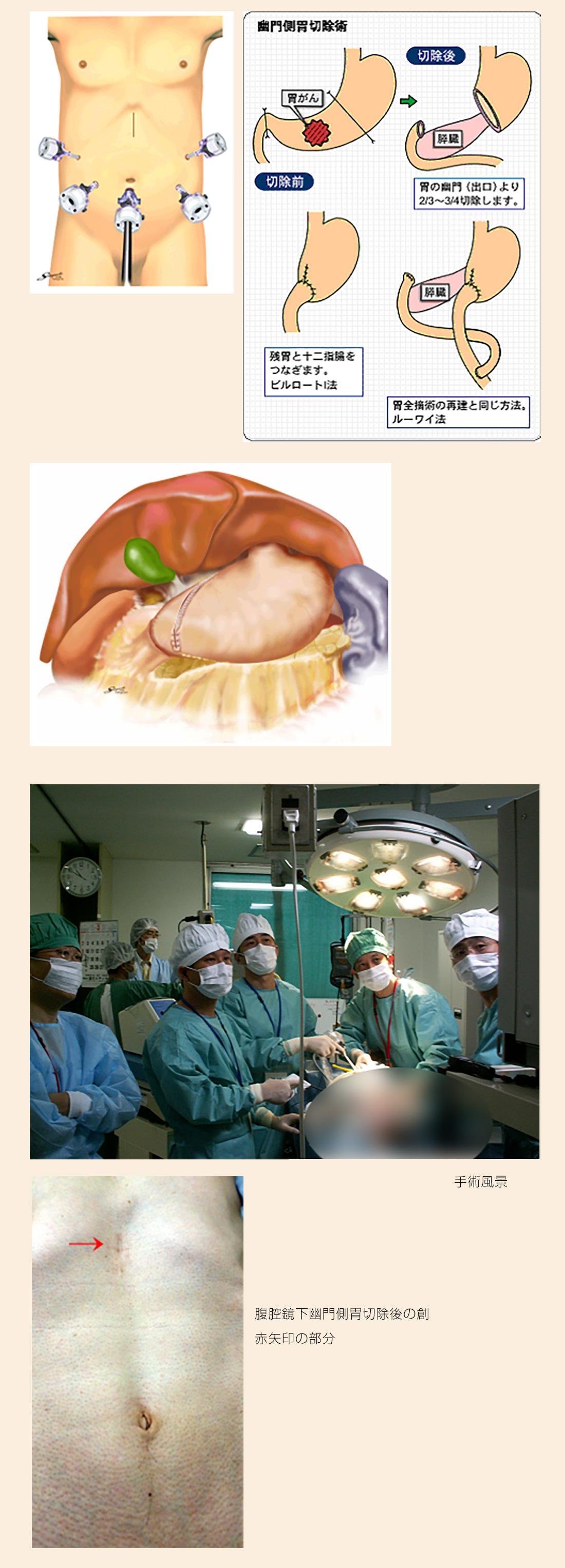 腹腔鏡下幽門側胃切除術