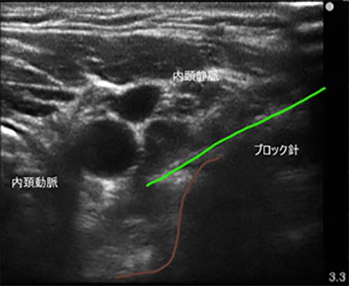 頚椎症に対して星状神経節ブロックをエコーガイド下に行った症例