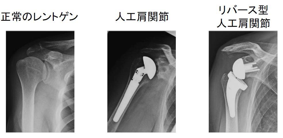 リバース型人工肩関節って何?